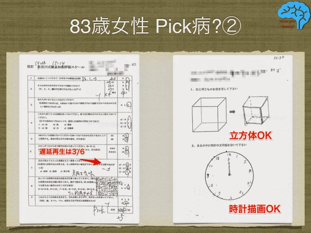 長谷川式は高得点で、立方体や時計描画も大丈夫