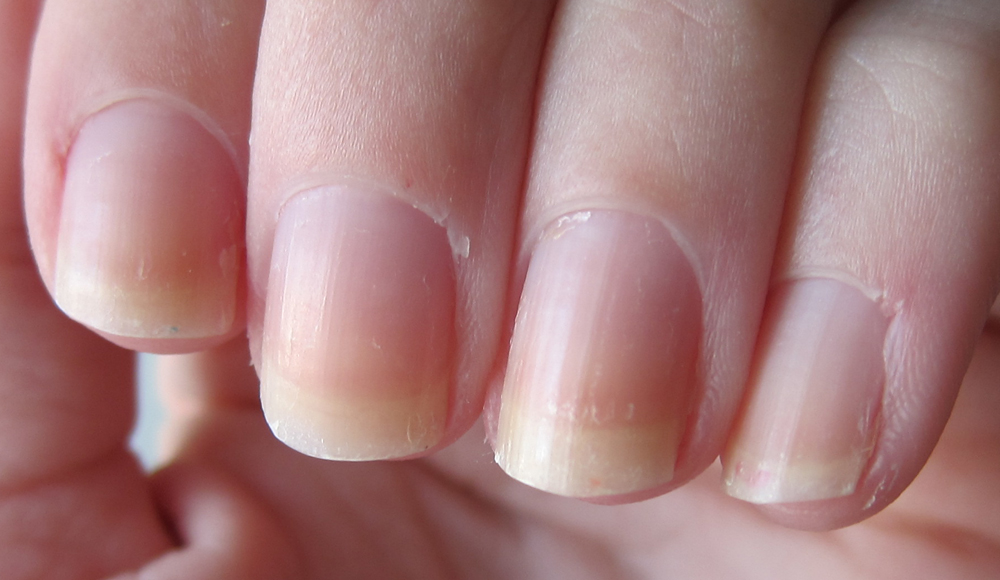 Piano Finger(nail)s: My Nail Journey: From nail biter to nail blogger