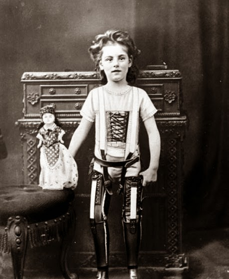 64 Historical Pictures you most likely haven't seen before. # 8 is a bit disturbing! 15. A kid with his artificial legs, 1898