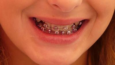 Kawat Gigi di cewek