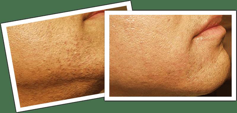 remove facial hair for men