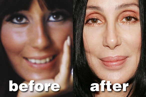 Chatter Busy: Cher Surgery