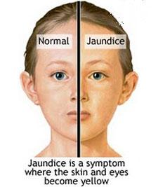 Hepatitis Homeopathy Specialty Treatment Center Jaundice