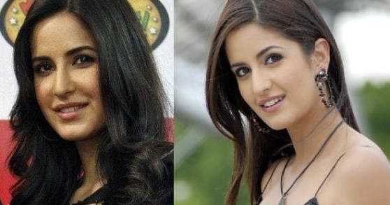 katrina kaif plastic surgery disaster katrina before and