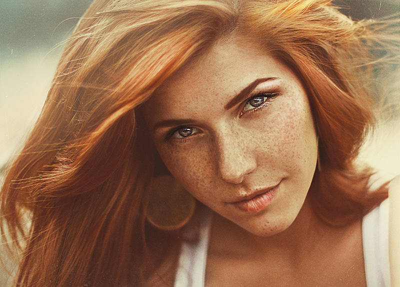 Violazione di pigmentazione di pelle