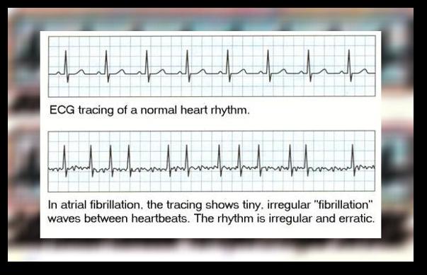 Ce este fibrilatia atriala?