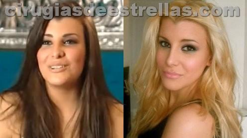 charlotte caniggia antes y despues
