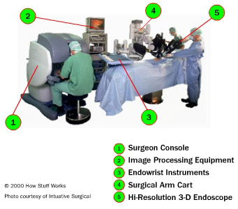 ai robots and the evolution of laparoscopic surgeries Robotic surgery is the use of robots in performing surgery laparoscopic surgery plastic surgery artificial intelligence accelerates discovery of metallic.