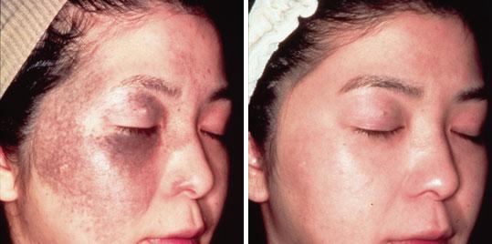 Repairs Skin Damaged from Years of Sun Exposure
