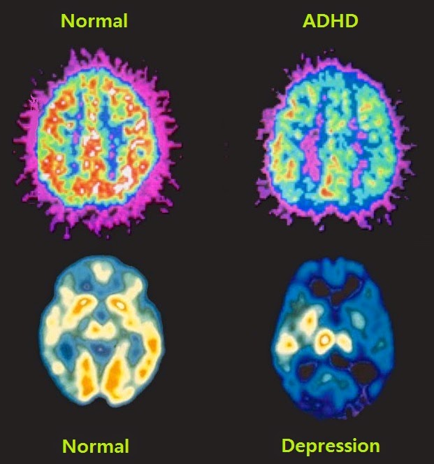 provigil for adhd and depression
