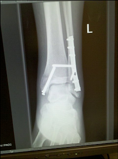 xray with hardware