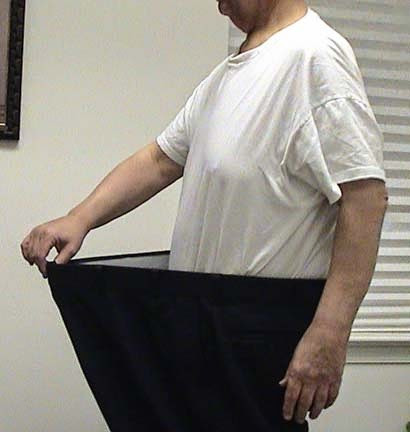 Course, 60 lb weight loss skin participants had