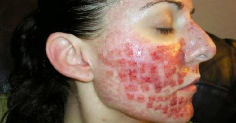 severe acne pictures acne picture. Black Bedroom Furniture Sets. Home Design Ideas