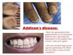 Informatii medicale despre boala Addison