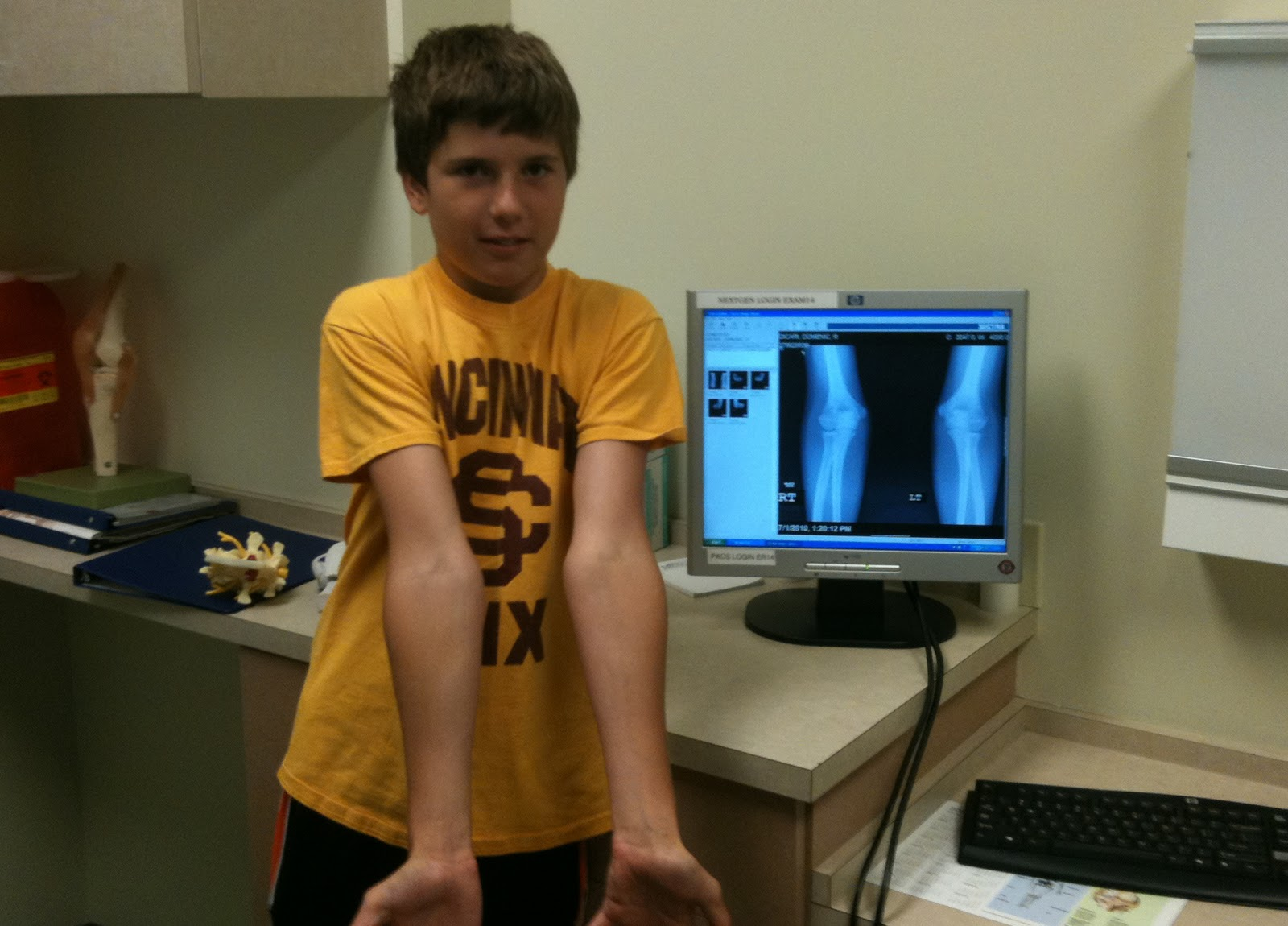 how to tell if you have a broken elbow