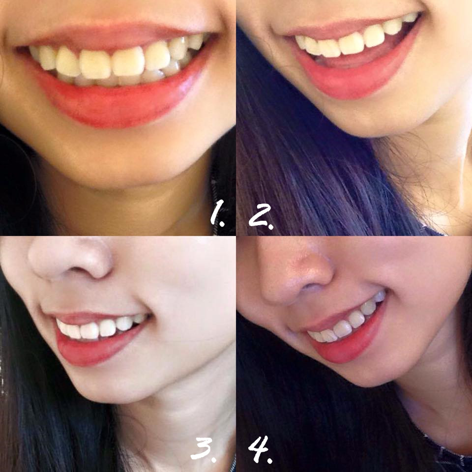 Fionev Opalescence Tooth Whitening