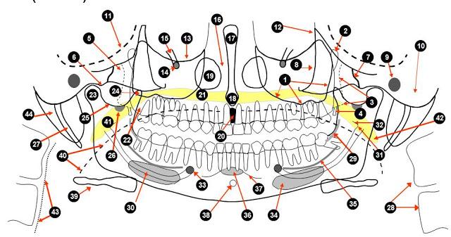 Tecnicos Radiologos: Ortopantomografia (Radiografia dental panorámica)