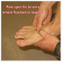 stress fracture foot Tampa