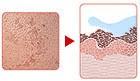 قبل المعالجة ، ويتضح أن الجلد غير صحي ، فهناك النمش والكلف ومختلف التبقعات