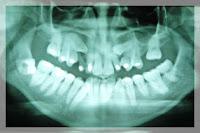 Todo lo que debes saber sobre los implantes dentales 4