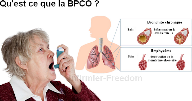 bronchopneumopathie chronique obstructive BPCO