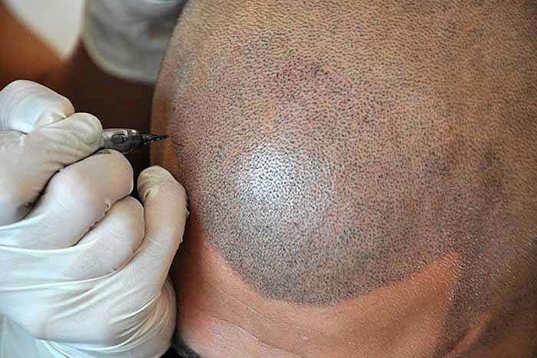 Scalp MicroPigmentation, Micropigmentação do Couro Cabeludo