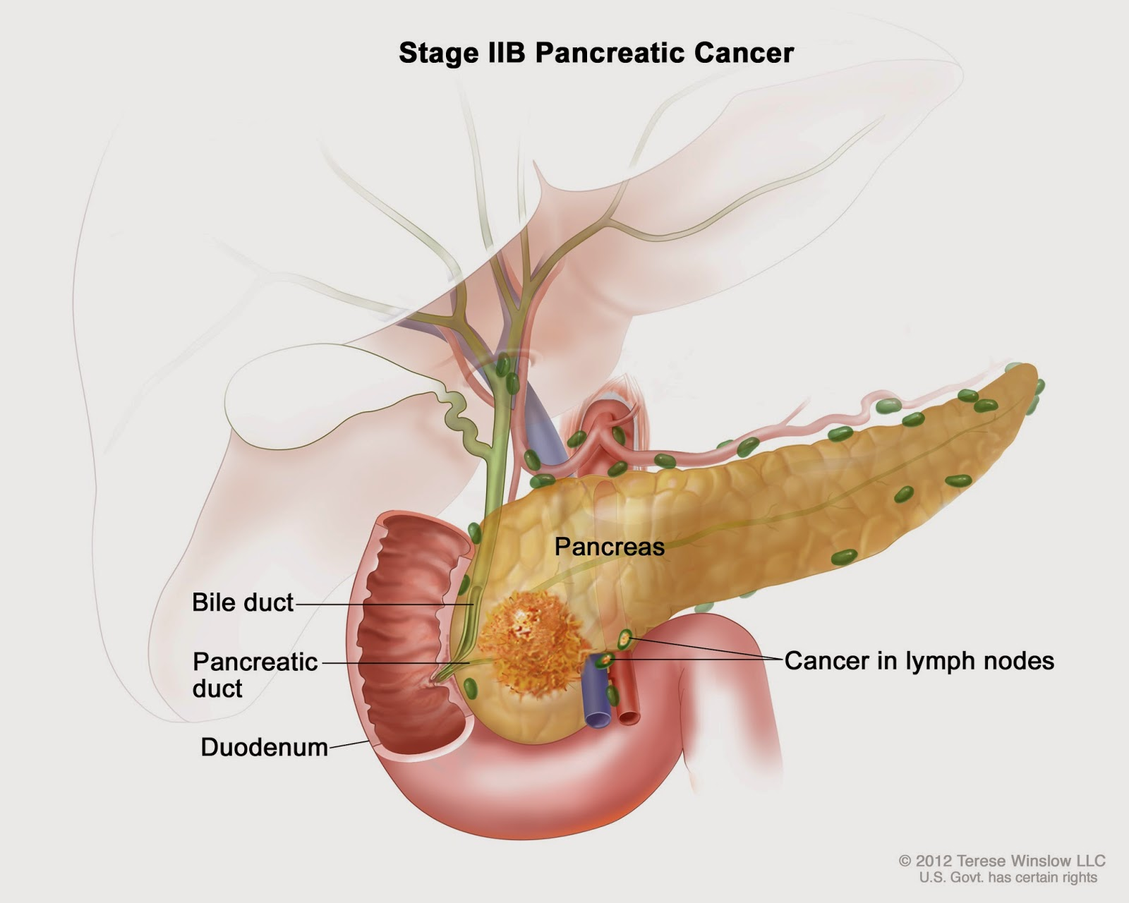 Study Sheds Light On What Makes Pancreatic Cancer So Aggressive