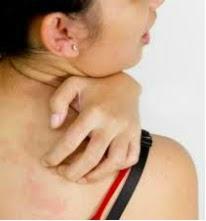 itching skin, pruritus