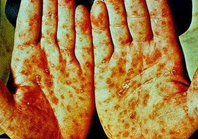 obat sifilis laten obat sipilis laten obat sipilis murah obat sipilis malaysia obat sipilis menurut dokter obat sipilis medis obat mujarab sifilis obat sipilis manggis obat mengobati sipilis obat menghilangkan sipilis obat mujarab sipilis obat sipilis paling mujarab obat sipilis yg manjur