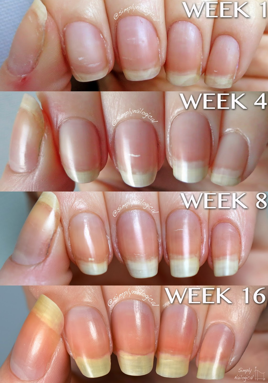 Week 1 What my Nails Looked