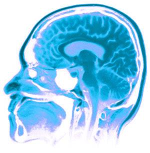 عشرة أضرار على المخ
