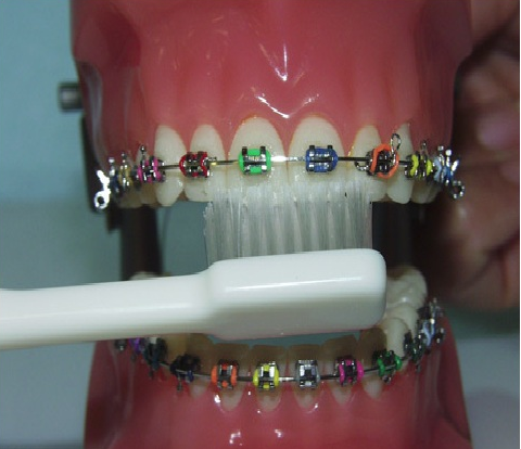 Cara menyikat gigi bagi pengguna behel