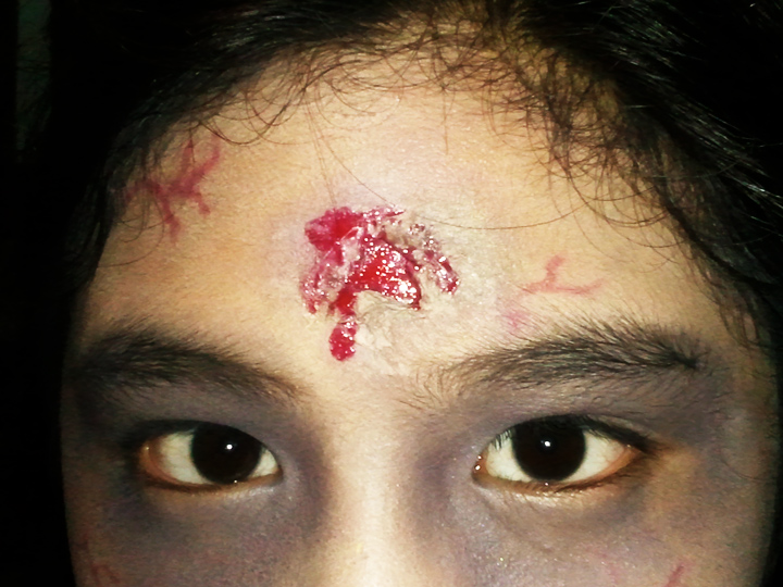 Gunshot Wounds | www.imgkid.com - The Image Kid Has It!