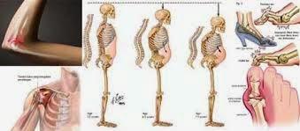 Obat Untuk Penyakit TBC Tulang