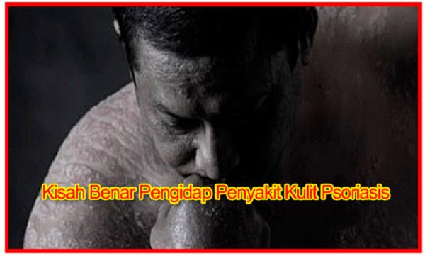 Penawar Alternatif Sakit kulit berkesan