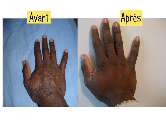 Le traitement le psoriasis de la peau de la personne