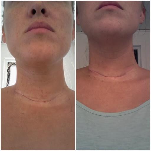 svullen lymfkörtel på halsen