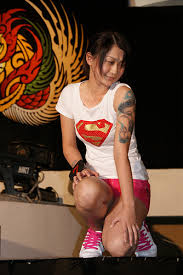 Risks of Laser Tattoo Removal