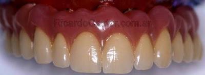 protesis fija sobre implantes dentales sobre metal y ceramica