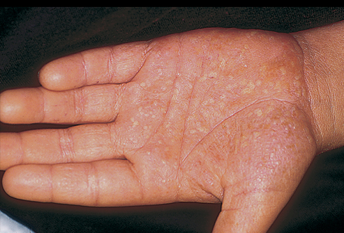 how to get rinde of wart on finger naturally
