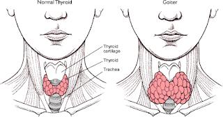 Beberapa Penyakit Yang Menyebabkan Hipertiroid