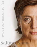 rejuvenecimiento facial en guadalajara cirugia plastica ritidectomia