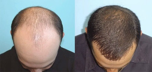 Hair surgery best hair loss products reviews the skill and technique of hair restoration surgeons vary widely as do their results learn from patients about which physicians are producing truly urmus Gallery
