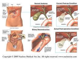 lower abdominal pain after gallbladder surgery