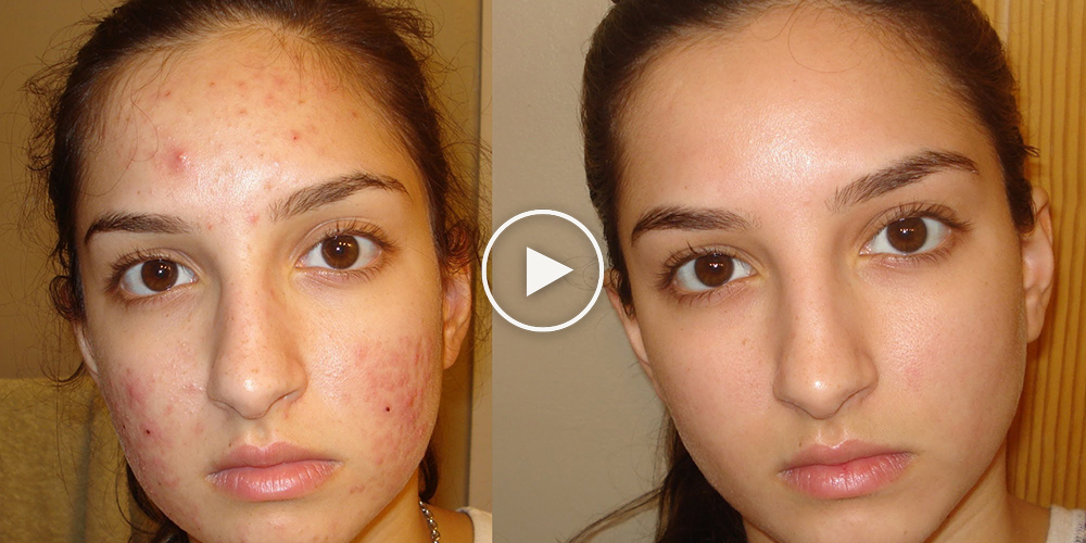 How To Get Rid Of Forehead Acne Overnight