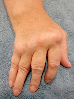 "alt=""tratamiento artritis alicante"""