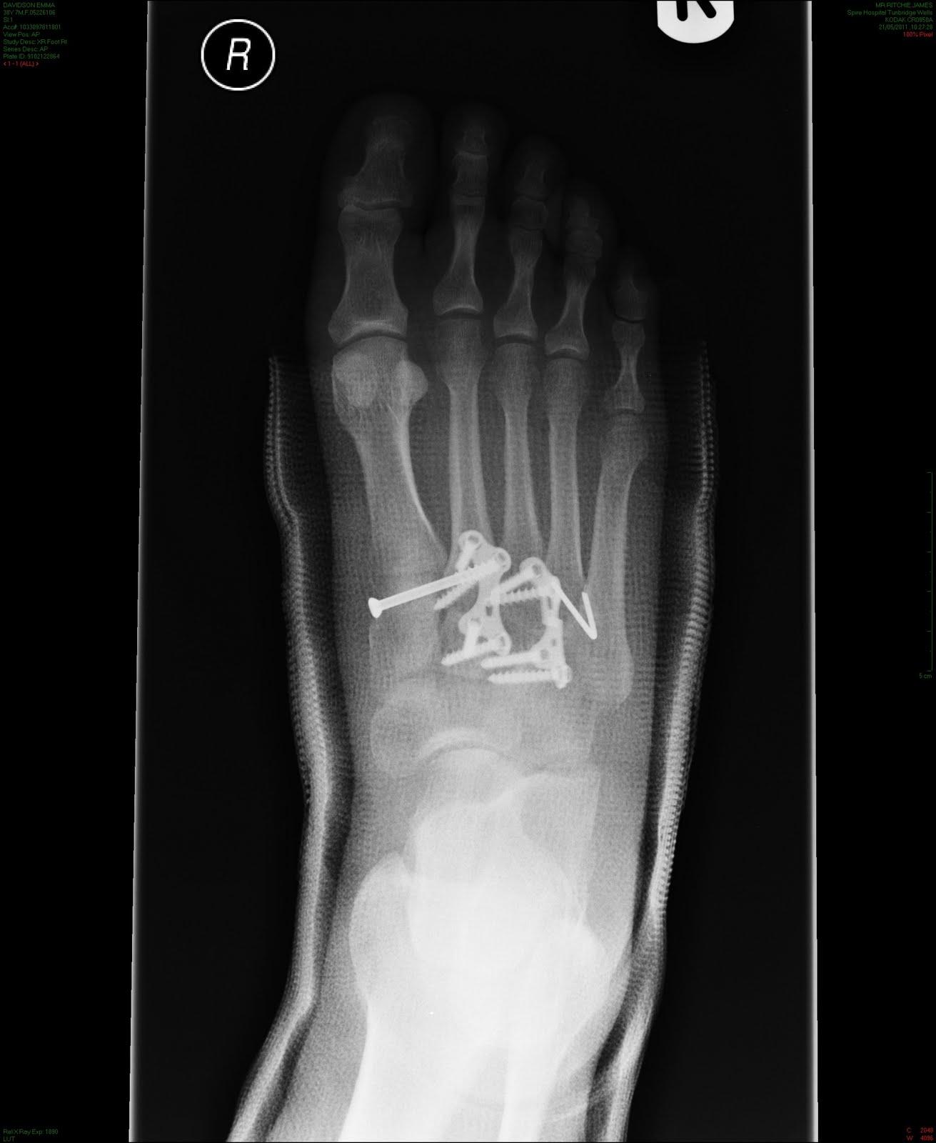 ap lisfranc fracture xray post op lateral lisfranc fracture post-2.bp.blogspot.com