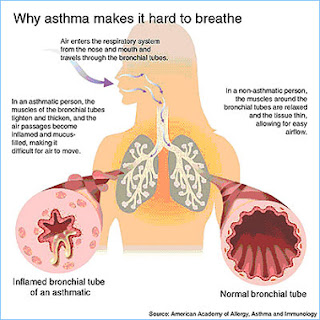 brown steroid inhaler side effects
