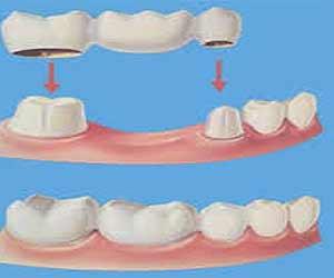 resiko memakai gigi palsu di usia muda ketika berpuasa hukum tanam