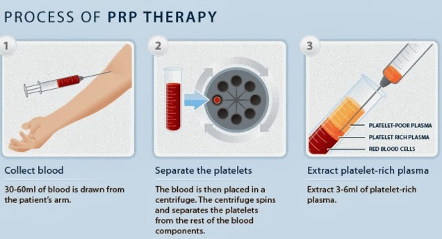 Image result for prp injections